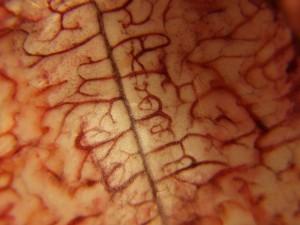 Flickr-Brain-Lnk_Si_-300x225